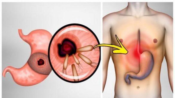 تخلصوا من البكتيريا التي تسبب حروق المعدة والانتفاخ!